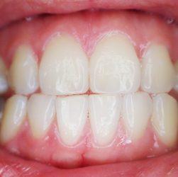 Gum Graft Image